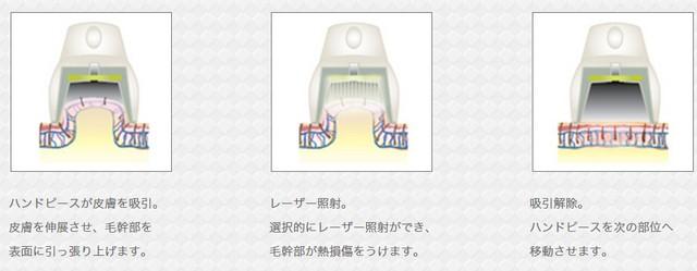 2015-09-09_143804