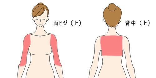 肩脱毛の図解